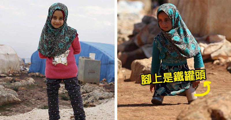 敘利亞小女孩「腳套鐵罐」 爸爸沒錢卻自己打造義肢...志工淚崩:戰火下最感人的一幕